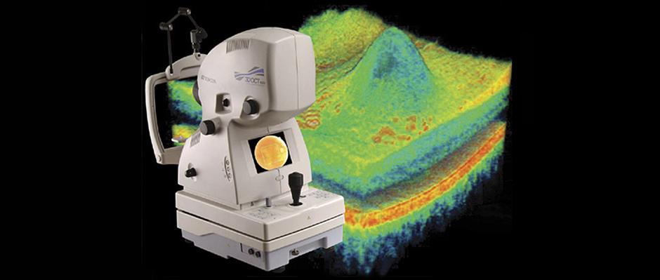 OCT – Tomografia de Coerência Óptica
