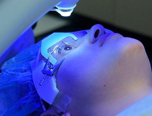 Cirurgia de Correção de Grau a Laser