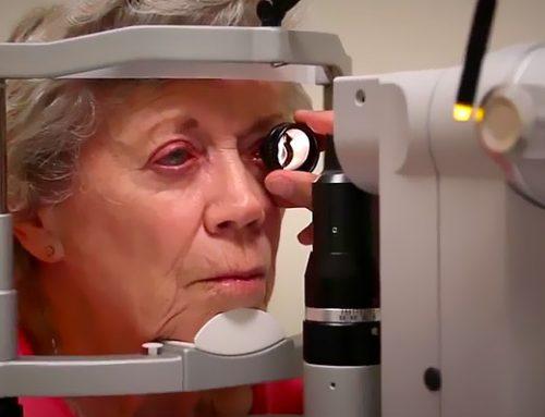 Fototrabeculoplastia – Tratamento a Laser do Glaucoma